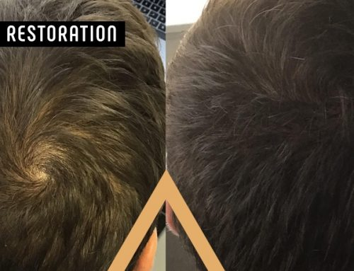 In-Office vs. At-Home Hair Restoration: Which One is Right For You?